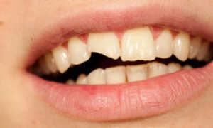 К чему снится сломанный зуб: если он сломался или откололся – сонник