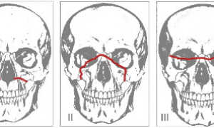Переломы верхней челюсти