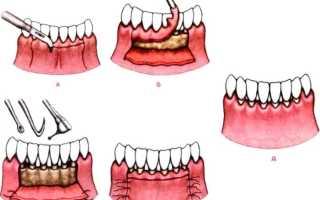 Кюретаж пародонтального кармана в стоматологии: что это, чем отличаются закрытый, открытый и лазерный кюретаж