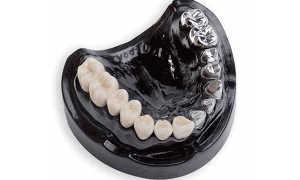 Все за и против зубных протезов из кобальт хрома