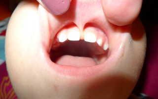 Короткая уздечка языка или верхней губы у ребенка: в каком возрасте подрезать и надо ли это делать?
