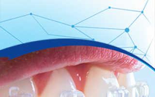Прикусил щеку: чем лечить щеку и как правильно определить причину явления