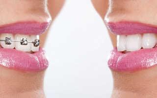 Капы, их удобство для выравнивания зубов, виды, рекомендации и совет стоматолога
