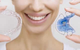 Пластинки на зубы для детей: виды, установка, сколько стоит