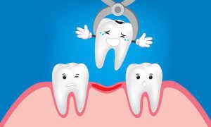 После удаления молочного зуба вырастают ли постоянные?