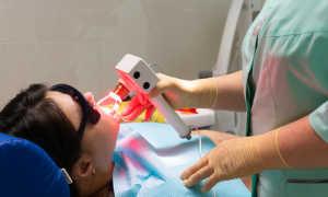 Что такое Терапия фотодинамическая в стоматологии?