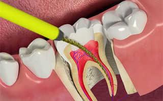 После сна больно дотрагиваться до зуба рядом с удаленным зубом