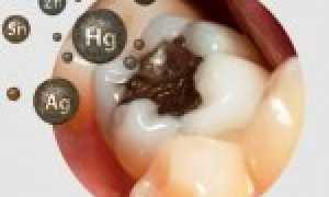 Мышьяковистый периодонтит (медикаментозный): симптомы, лечение и возможные последствия