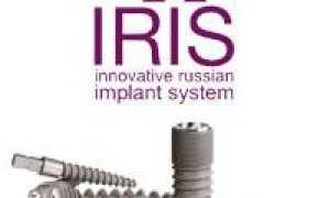 Уникальные возможности дентальных имплантов Ирис