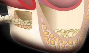 Что такое синуслифтинг в стоматологии и как это делается