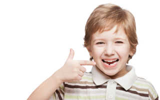 Перелом корня молочного зуба