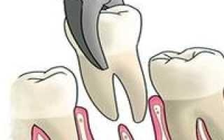 Через сколько времени можно ставить имплант после удаления зуба