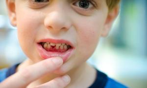 Почему кровоточат десны у детей?