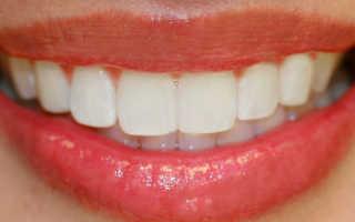 Что такое Прикус зубов в стоматологии?