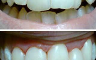 Скученность зубов: фото, лечение у взрослых и детей