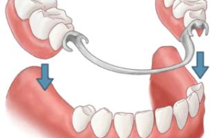 Разновидности протезов зубов