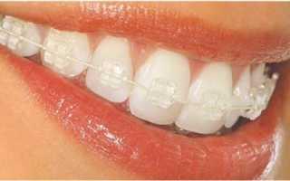 Aspire брекеты — золотые стражи красоты зубных рядов!