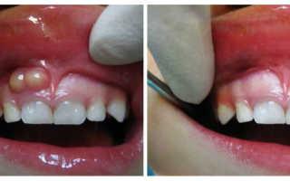 Симптоматика и лечение периостита челюсти
