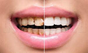 Выбор цвета для зубов при реставрации