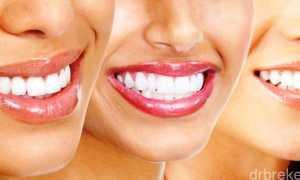 Выравнивание зубов с помощью люминиров