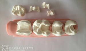 Из какого металла установить вкладку для восстановления зуба?