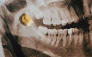 Зуб мудрости режется, что делать? » Быть может лучший сайт о лечении зубов