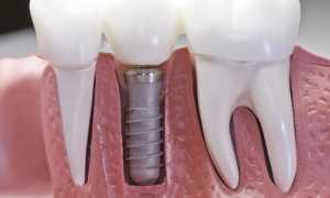 Мифы об имплантации зубов