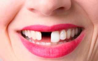 Почему выпадают здоровые зубы – методы решения проблемы