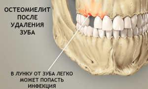 Свищ зуба после удаления зуба: причины, сопутствующие симптомы, лечение, профилактика