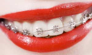 Сколько стоят брекеты на зубы и из чего складывается стоимость?