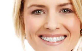 Брекеты In Ovation — удобные конструкции для лечения зубов
