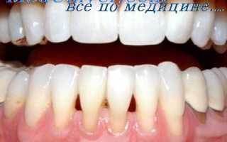 Как сохранить зубы после удаления кисты и кости над передними зубами?