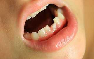 Шатаются зубы: как лечить, как укрепить в домашних условиях, народные средства