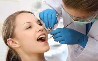 Этапы имплантации зубов – фото
