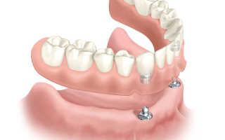 Все, что нужно знать о покрывном зубном протезе