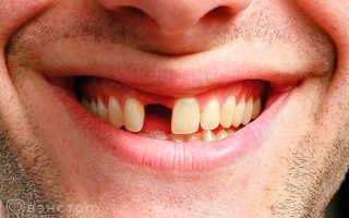Сколько стоит поставить зуб в москве