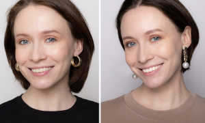 Отбеливание зубов Zoom 3: плюсы и минусы, домашняя система, фото до и после, цены, отзывы