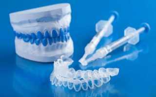 Капы для отбеливания зубов: виды и противопоказания, способы использования кап и ухода за ними