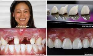 Cerec эстетическая керамическая реставрация зубов