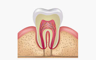 Как убить нерв в зубе самостоятельно: советы