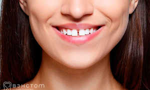 Удалять ли зубы мудрости подростку в 14 лет перед установкой брекетов?