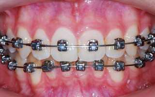Возможна ли несовместимость брекетов и имплантов?