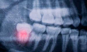 Пульпит зуба мудрости симптомы