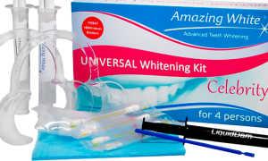 Amazing White отбеливание: как проводится процедура, стоимость, отзывы