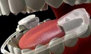 Средства гигиены полости рта – основные и дополнительные предметы, классификация