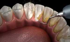 Удаление поддесневого зубного камня. Какой метод лучше?