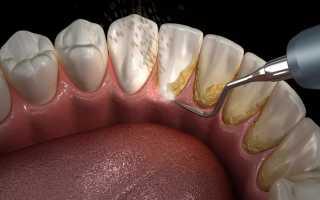 Желтый налет на внутренней стороне зубов