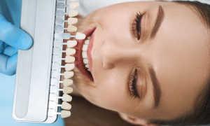 Какой винир больше подходит для реставрации потемневшего зуба?