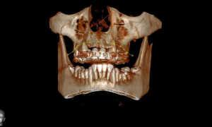 Возможности компьютерной томографии в стоматологии