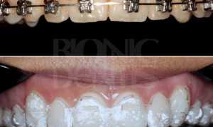 Каппы для выравнивания зубов элайнеры INVISALIGN